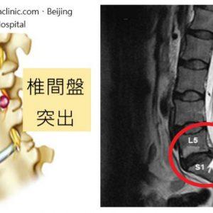 椎間盤突出-開刀